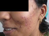 Acne Clinic