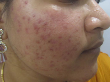 Adenoma sebaceous before surgical