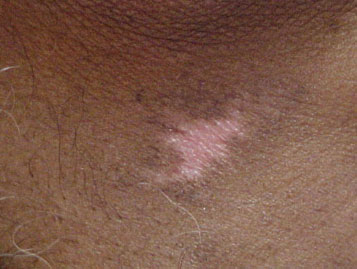 Vitiligo surgeries
