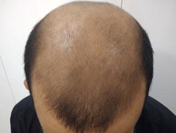 Platelet rich plasma hair growth