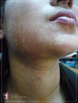 birthmark_02