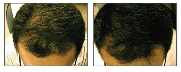 Before Hair Grafting